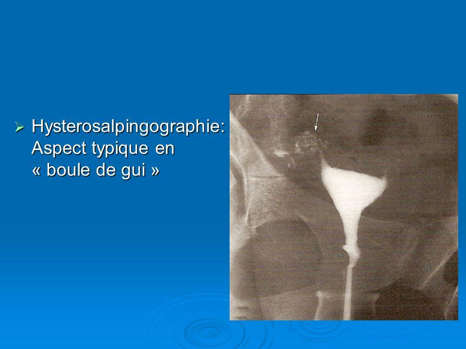 Hysterosalpingographie: Aspect typique en « boule de gui » Hysterosalpingographie: Aspect typique en « boule de gui »