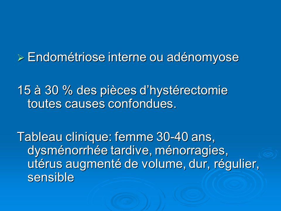 Endométriose interne ou adénomyose Endométriose interne ou adénomyose 15 à 30 % des pièces dhystérectomie toutes causes confondues. Tableau clinique:
