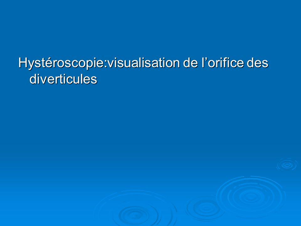 Hystéroscopie:visualisation de lorifice des diverticules