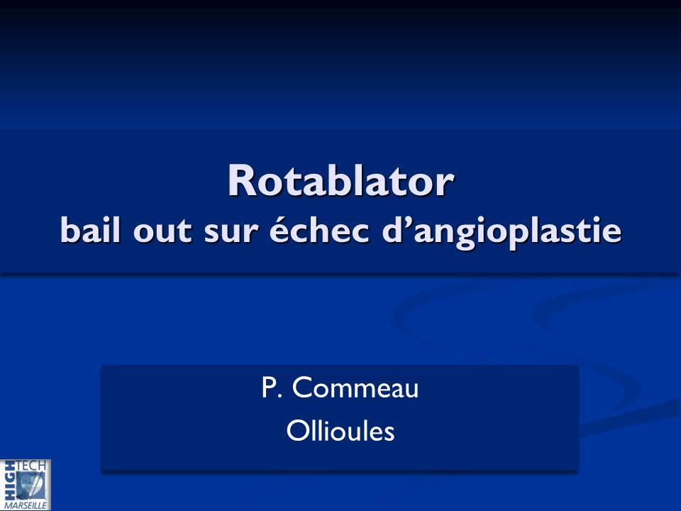 Rotablator bail out sur échec dangioplastie P. Commeau Ollioules P. Commeau Ollioules