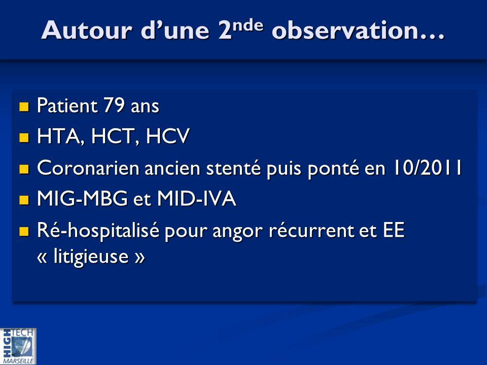 Autour dune 2 nde observation… Patient 79 ans Patient 79 ans HTA, HCT, HCV HTA, HCT, HCV Coronarien ancien stenté puis ponté en 10/2011 Coronarien ancien stenté puis ponté en 10/2011 MIG-MBG et MID-IVA MIG-MBG et MID-IVA Ré-hospitalisé pour angor récurrent et EE « litigieuse » Ré-hospitalisé pour angor récurrent et EE « litigieuse » Patient 79 ans Patient 79 ans HTA, HCT, HCV HTA, HCT, HCV Coronarien ancien stenté puis ponté en 10/2011 Coronarien ancien stenté puis ponté en 10/2011 MIG-MBG et MID-IVA MIG-MBG et MID-IVA Ré-hospitalisé pour angor récurrent et EE « litigieuse » Ré-hospitalisé pour angor récurrent et EE « litigieuse »