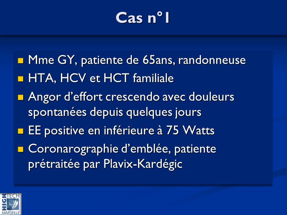 Cas n°1 Mme GY, patiente de 65ans, randonneuse Mme GY, patiente de 65ans, randonneuse HTA, HCV et HCT familiale HTA, HCV et HCT familiale Angor deffort crescendo avec douleurs spontanées depuis quelques jours Angor deffort crescendo avec douleurs spontanées depuis quelques jours EE positive en inférieure à 75 Watts EE positive en inférieure à 75 Watts Coronarographie demblée, patiente prétraitée par Plavix-Kardégic Coronarographie demblée, patiente prétraitée par Plavix-Kardégic Mme GY, patiente de 65ans, randonneuse Mme GY, patiente de 65ans, randonneuse HTA, HCV et HCT familiale HTA, HCV et HCT familiale Angor deffort crescendo avec douleurs spontanées depuis quelques jours Angor deffort crescendo avec douleurs spontanées depuis quelques jours EE positive en inférieure à 75 Watts EE positive en inférieure à 75 Watts Coronarographie demblée, patiente prétraitée par Plavix-Kardégic Coronarographie demblée, patiente prétraitée par Plavix-Kardégic
