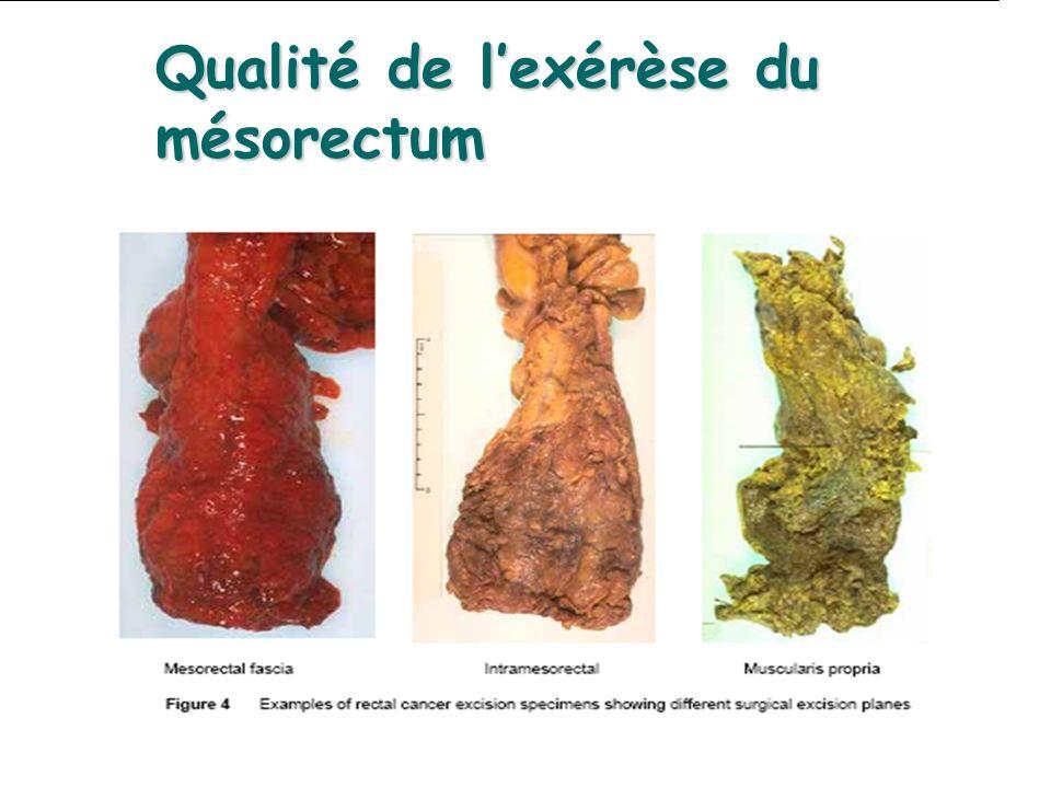 Qualité de lexérèse du mésorectum