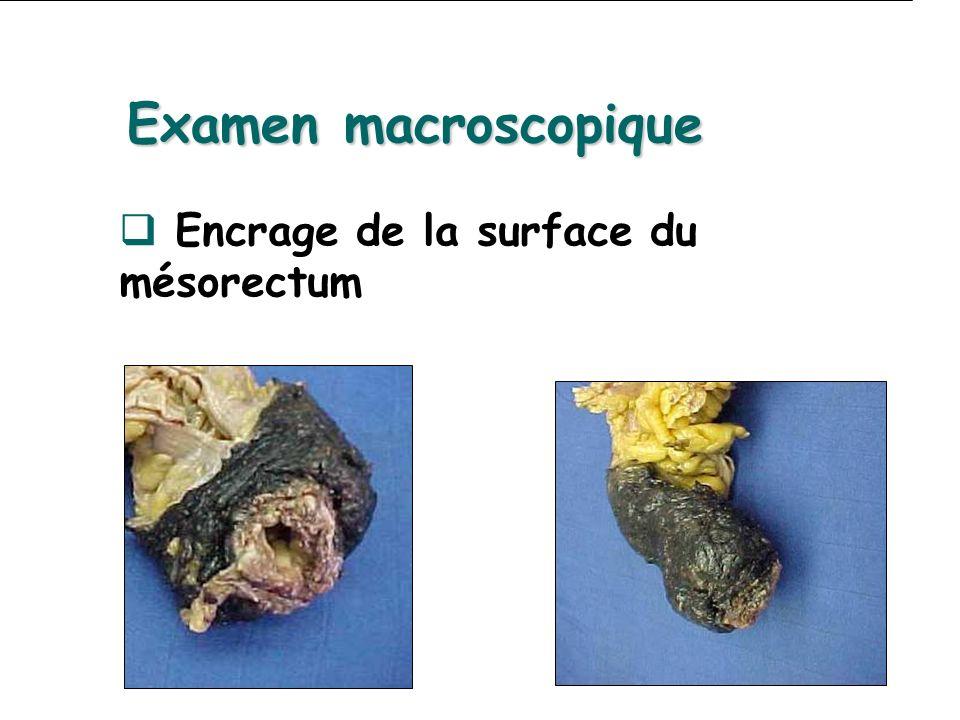 Encrage de la surface du mésorectum Examen macroscopique