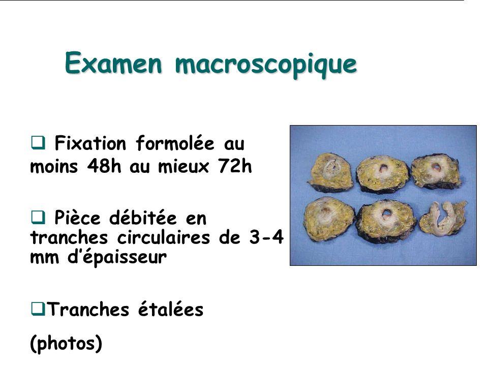 Fixation formolée au moins 48h au mieux 72h Pièce débitée en tranches circulaires de 3-4 mm dépaisseur Tranches étalées (photos) Examen macroscopique