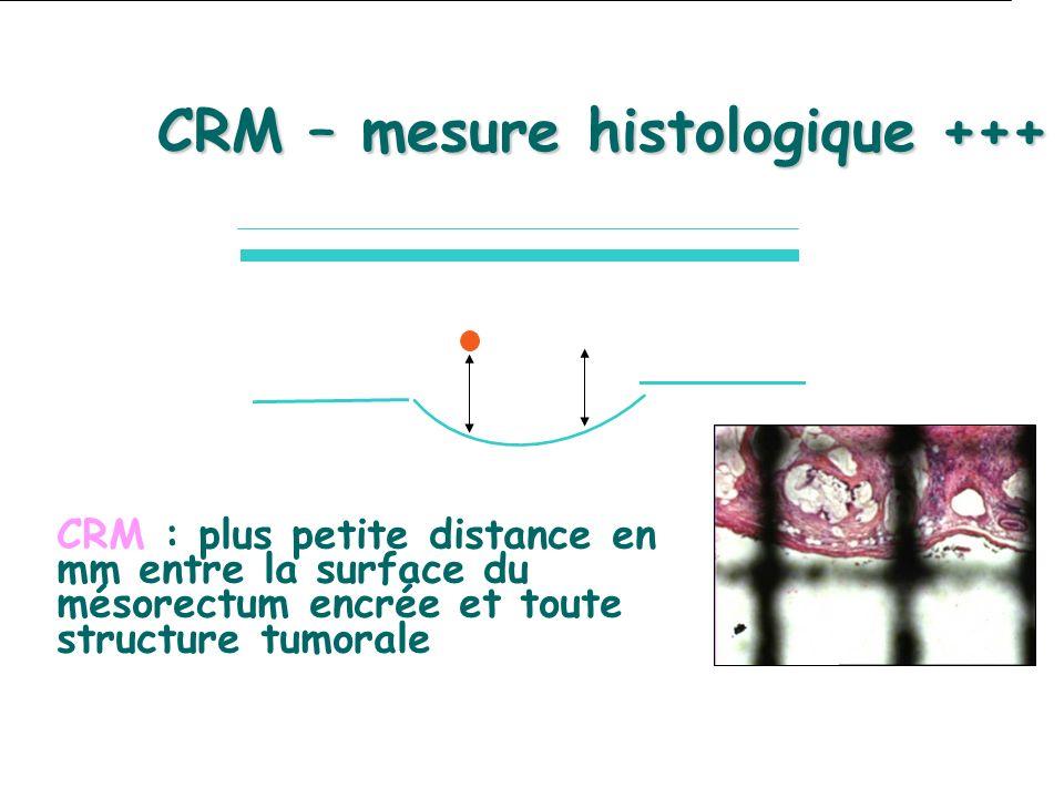 CRM : plus petite distance en mm entre la surface du mésorectum encrée et toute structure tumorale CRM – mesure histologique +++
