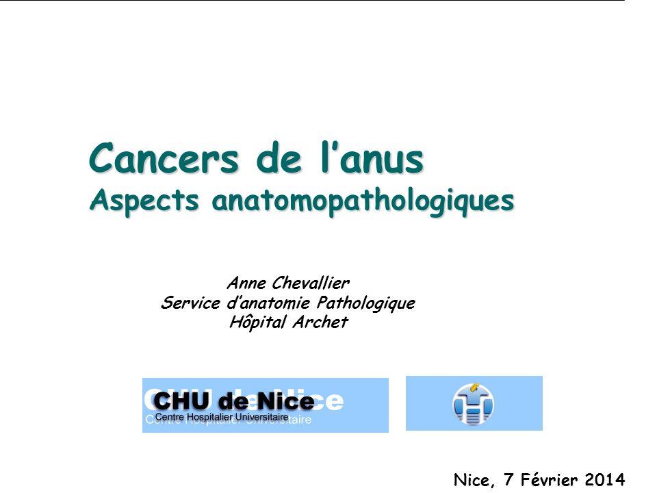 Cancers de lanus Aspects anatomopathologiques Anne Chevallier Service danatomie Pathologique Hôpital Archet Nice, 7 Février 2014