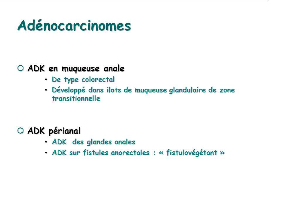 Adénocarcinomes ADK en muqueuse anale ADK en muqueuse anale De type colorectal De type colorectal Développé dans ilots de muqueuse glandulaire de zone