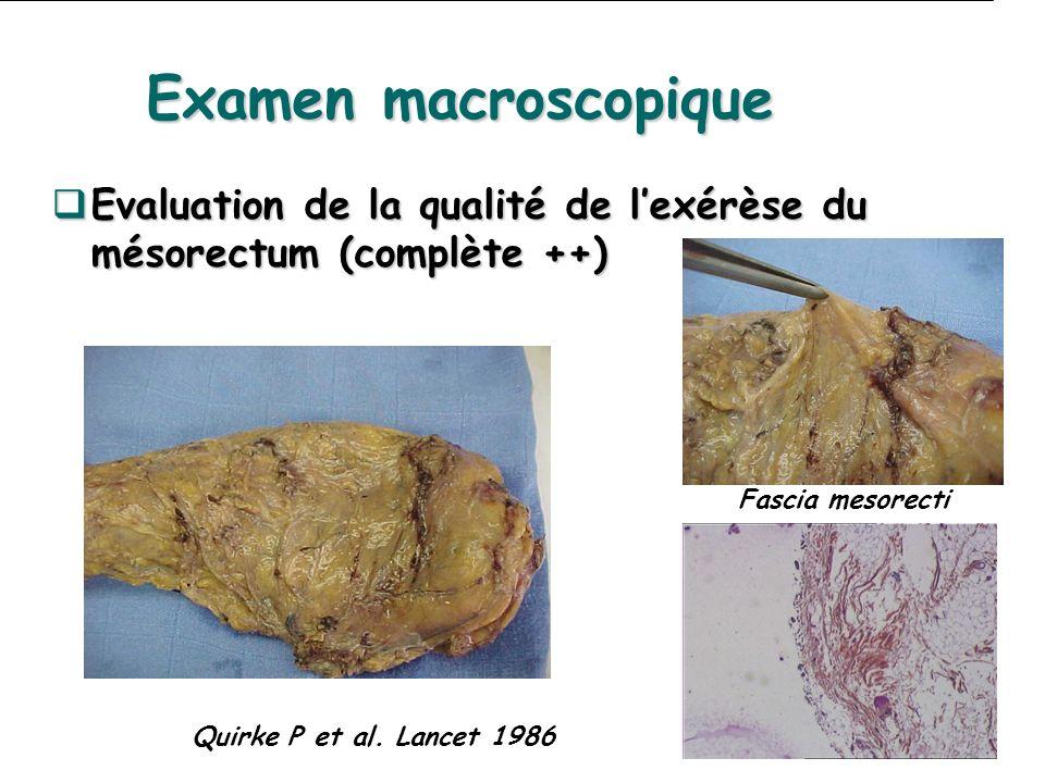 Evaluation de la qualité de lexérèse du mésorectum (complète ++) Evaluation de la qualité de lexérèse du mésorectum (complète ++) Quirke P et al. Lanc