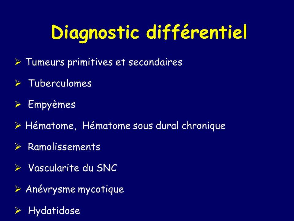 Diagnostic différentiel Tumeurs primitives et secondaires Tuberculomes Empyèmes Hématome, Hématome sous dural chronique Ramolissements Vascularite du SNC Anévrysme mycotique Hydatidose