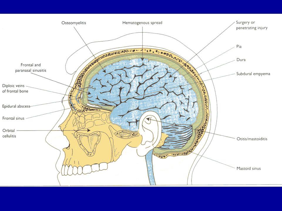 Abcès / empyèmes post-opératoires (Etude craniotomies Pitié-Salpétrière 1997-2001) P.