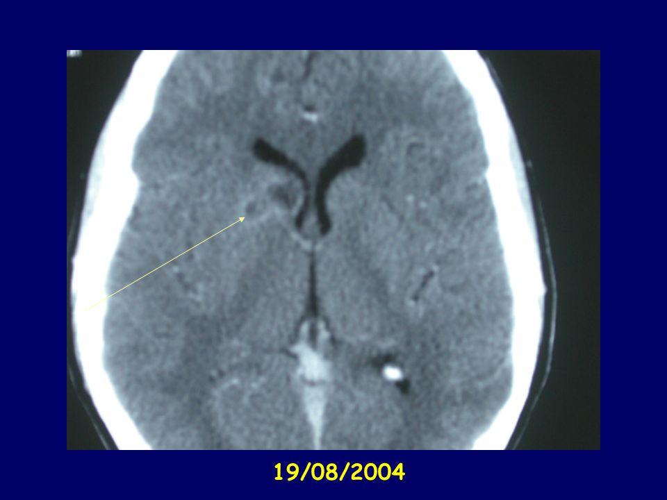 Évolution clinique des abcès du cerveau Séquelles neurologiques : 30-50 % Lésions invalidantes : 15 à 20 % Épilepsie résiduelle : 50 % Persistance des images radiologiques jusqu au 3 ème mois : l évolution se juge sur la clinique