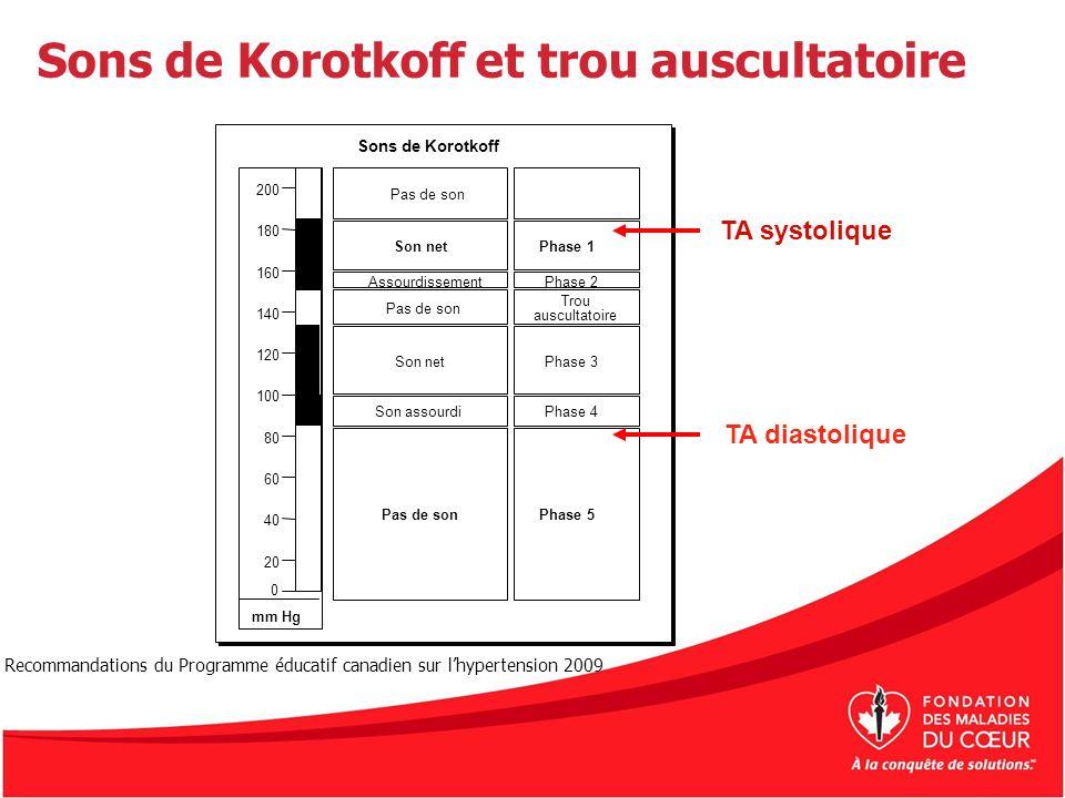 Sons de Korotkoff et trou auscultatoire TA systolique TA diastolique 200 180 160 140 120 100 80 60 40 20 0 Pas de son Son net Son assourdi Pas de son