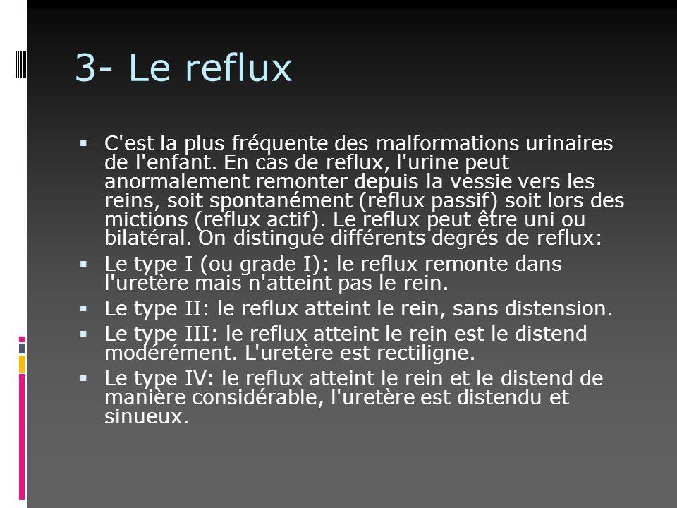 3- Le reflux C'est la plus fréquente des malformations urinaires de l'enfant. En cas de reflux, l'urine peut anormalement remonter depuis la vessie ve