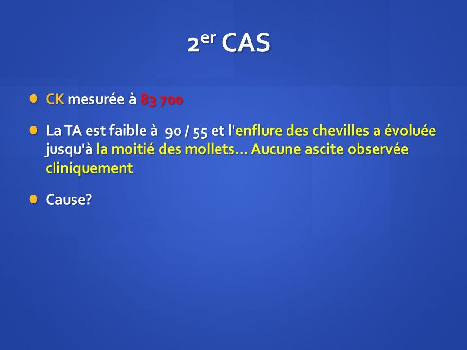 2 er CAS CK mesurée à 83 700 CK mesurée à 83 700 La TA est faible à 90 / 55 et l'enflure des chevilles a évoluée jusqu'à la moitié des mollets… Aucune