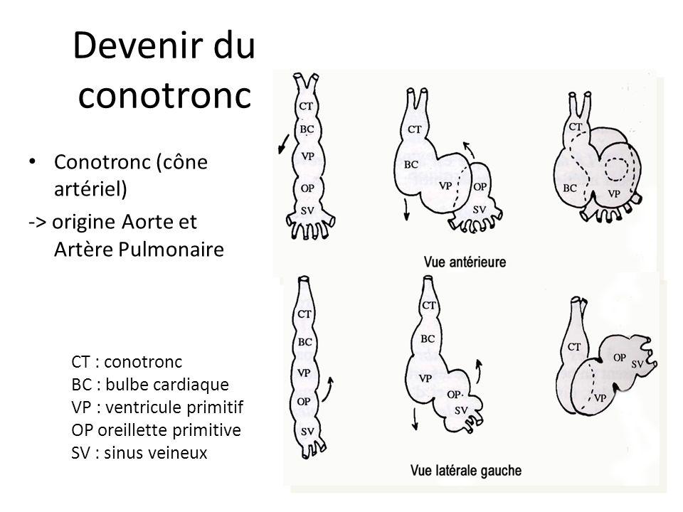 Devenir du conotronc Conotronc (cône artériel) -> origine Aorte et Artère Pulmonaire CT : conotronc BC : bulbe cardiaque VP : ventricule primitif OP oreillette primitive SV : sinus veineux