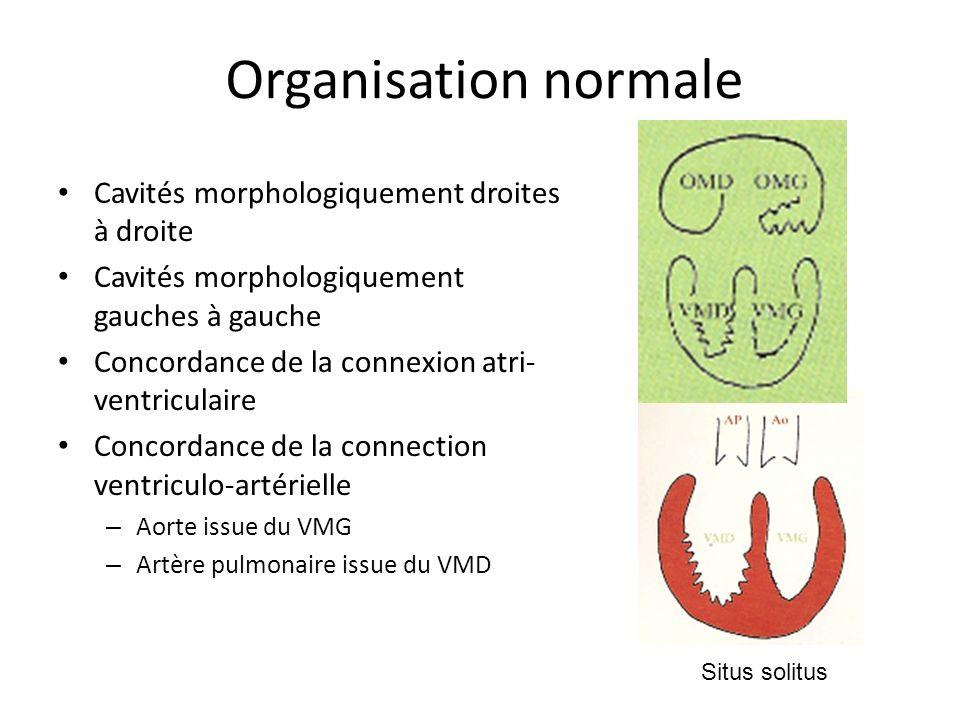 Organisation normale Cavités morphologiquement droites à droite Cavités morphologiquement gauches à gauche Concordance de la connexion atri- ventriculaire Concordance de la connection ventriculo-artérielle – Aorte issue du VMG – Artère pulmonaire issue du VMD Situs solitus