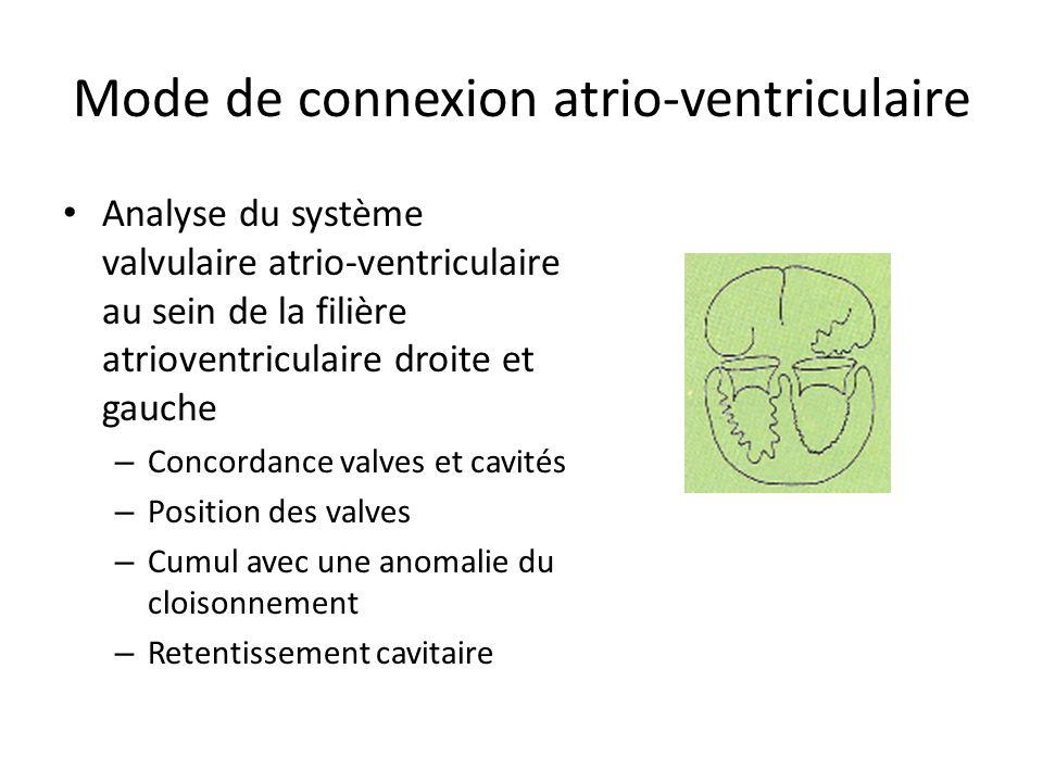 Mode de connexion atrio-ventriculaire Analyse du système valvulaire atrio-ventriculaire au sein de la filière atrioventriculaire droite et gauche – Concordance valves et cavités – Position des valves – Cumul avec une anomalie du cloisonnement – Retentissement cavitaire