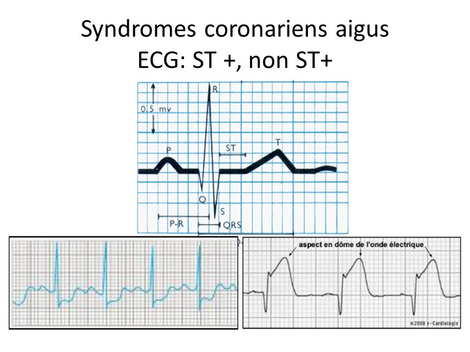Syndromes coronariens aigus ECG: ST +, non ST+