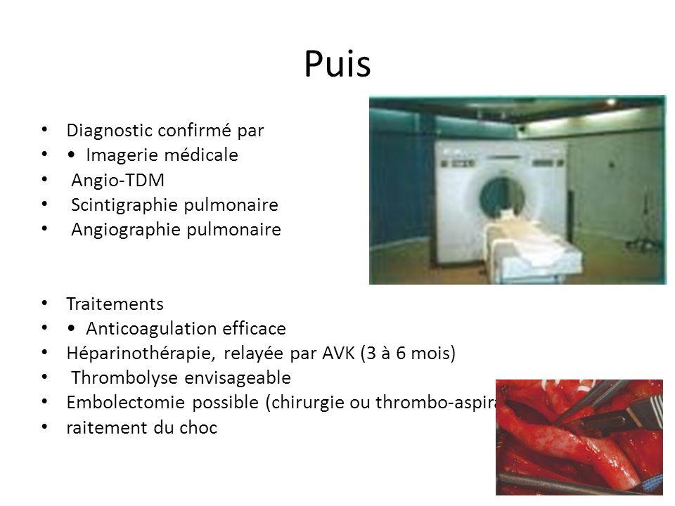 Puis Diagnostic confirmé par Imagerie médicale Angio-TDM Scintigraphie pulmonaire Angiographie pulmonaire Traitements Anticoagulation efficace Héparin