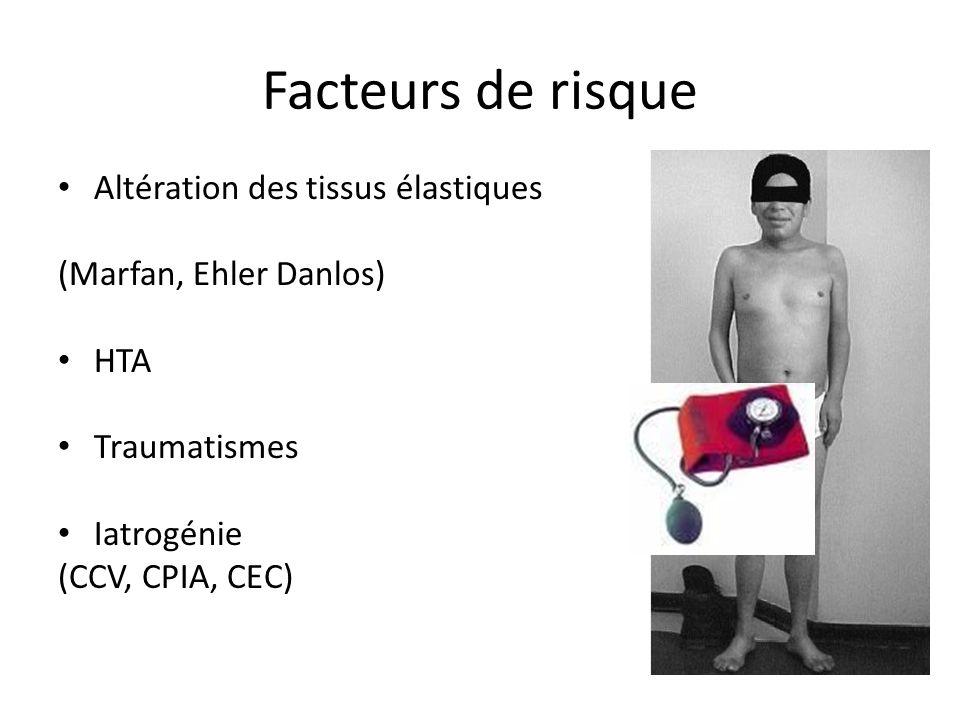 Facteurs de risque Altération des tissus élastiques (Marfan, Ehler Danlos) HTA Traumatismes Iatrogénie (CCV, CPIA, CEC)