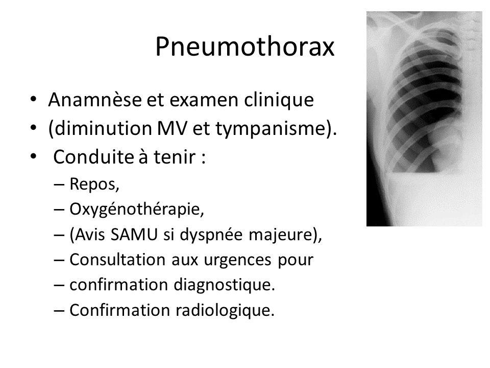Pneumothorax Anamnèse et examen clinique (diminution MV et tympanisme). Conduite à tenir : – Repos, – Oxygénothérapie, – (Avis SAMU si dyspnée majeure