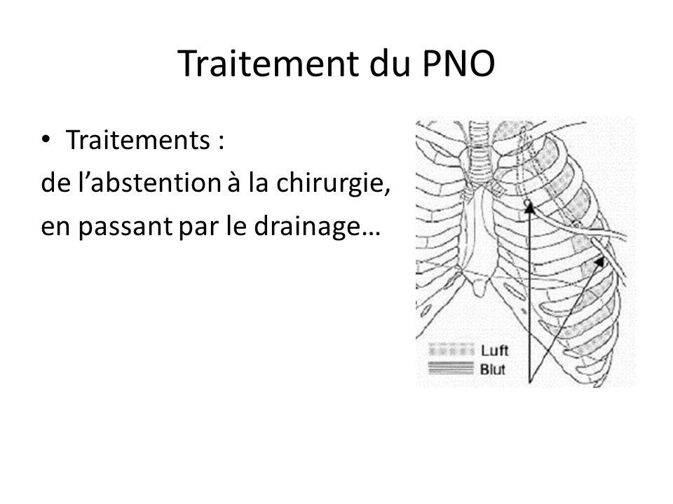 Traitement du PNO Traitements : de labstention à la chirurgie, en passant par le drainage…