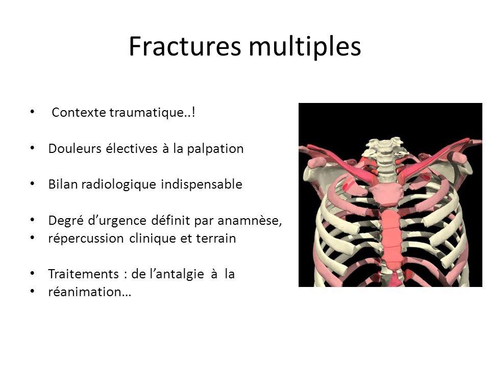 Fractures multiples Contexte traumatique..! Douleurs électives à la palpation Bilan radiologique indispensable Degré durgence définit par anamnèse, ré