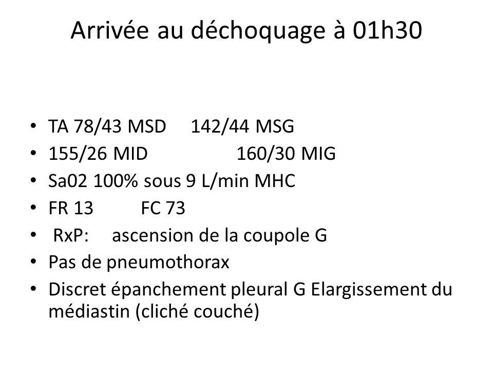 Arrivée au déchoquage à 01h30 TA 78/43 MSD 142/44 MSG 155/26 MID 160/30 MIG Sa02 100% sous 9 L/min MHC FR 13 FC 73 RxP: ascension de la coupole G Pas