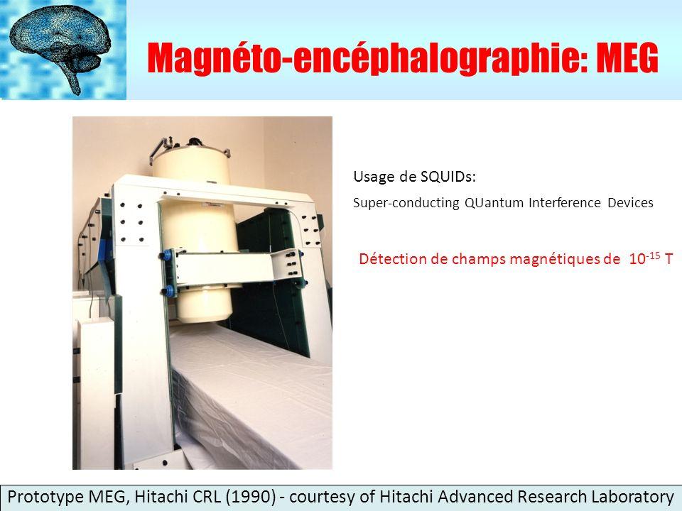 Imagerie par Résonance Magnétique fonctionnelle : IRMf Image anatomique en 3D EPI-fMRI champ magnétique: 2T Hitachi CRL (1992) Hitachi SDL (1990) Courtesy of Hitachi Advanced Research Laboratory