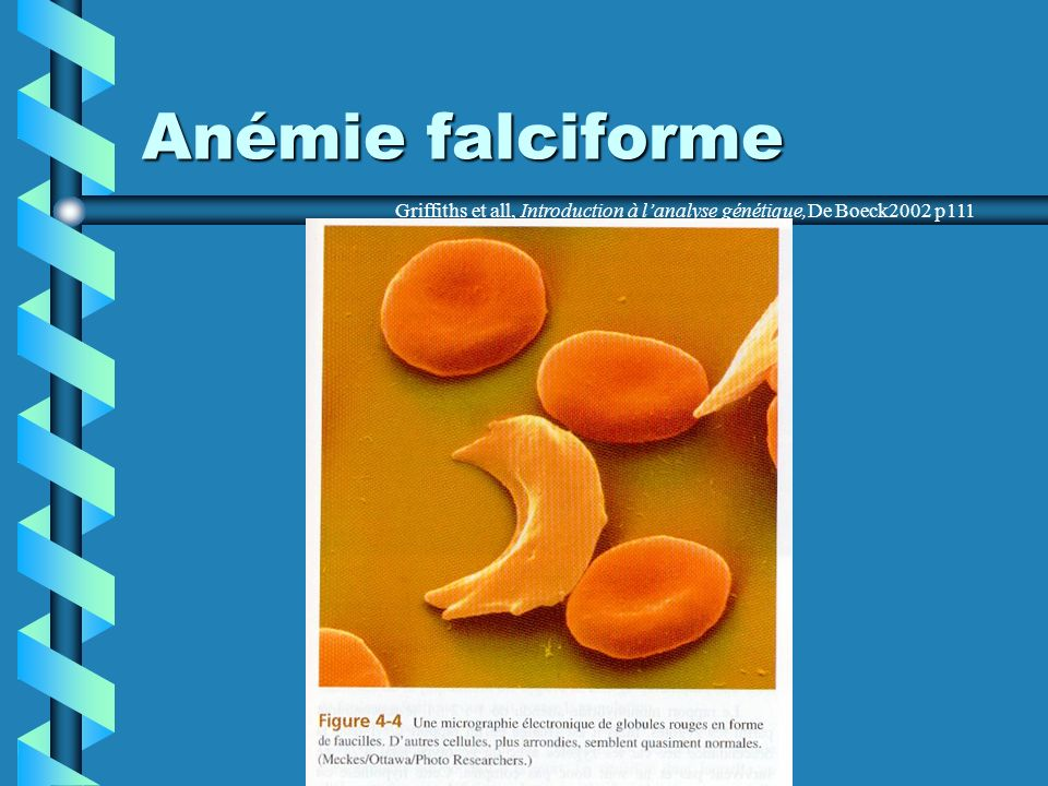 Anémie falciforme Griffiths et all, Introduction à lanalyse génétique,De Boeck2002 p111