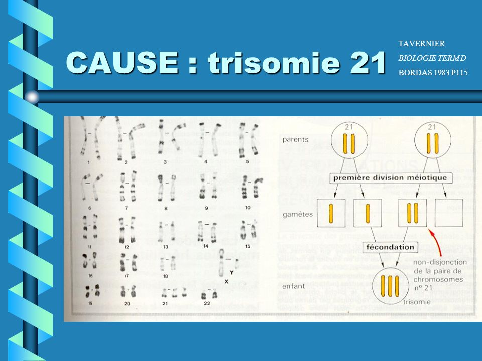 CAUSE : trisomie 21 TAVERNIER BIOLOGIE TERM D BORDAS 1983 P115