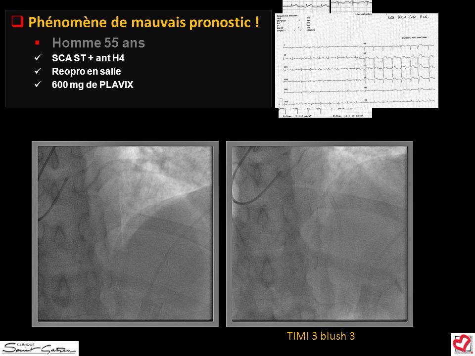 TIMI 3 blush 3 Phénomène de mauvais pronostic ! Homme 55 ans SCA ST + ant H4 Reopro en salle 600 mg de PLAVIX