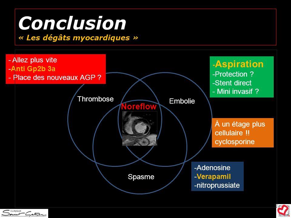 Conclusion « Les dégâts myocardiques » Noreflow Embolie Thrombose Spasme -Adenosine -Verapamil -nitroprussiate - Allez plus vite -Anti Gp2b 3a - Place