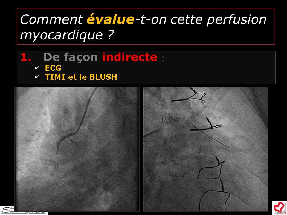 Comment évalue-t-on cette perfusion myocardique ? 1.De façon indirecte : ECG TIMI et le BLUSH