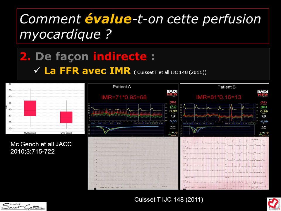 Comment évalue-t-on cette perfusion myocardique ? 2.De façon indirecte : La FFR avec IMR ( Cuisset T et all IJC 148 (2011)) Mc Geoch et all JACC 2010;