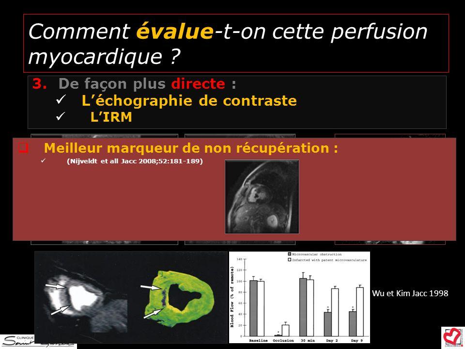 Comment évalue-t-on cette perfusion myocardique ? 3.De façon plus directe : Léchographie de contraste LIRM MVO Wu et Kim Jacc 1998 Clinique Saint Gati