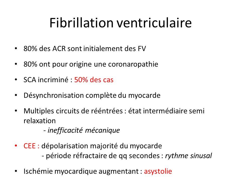 Fibrillation ventriculaire 80% des ACR sont initialement des FV 80% ont pour origine une coronaropathie SCA incriminé : 50% des cas Désynchronisation