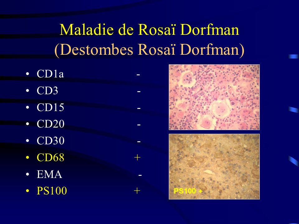 Maladie de Rosaï Dorfman (Destombes Rosaï Dorfman) CD1a - CD3 - CD15 - CD20 - CD30 - CD68 + EMA - PS100 +