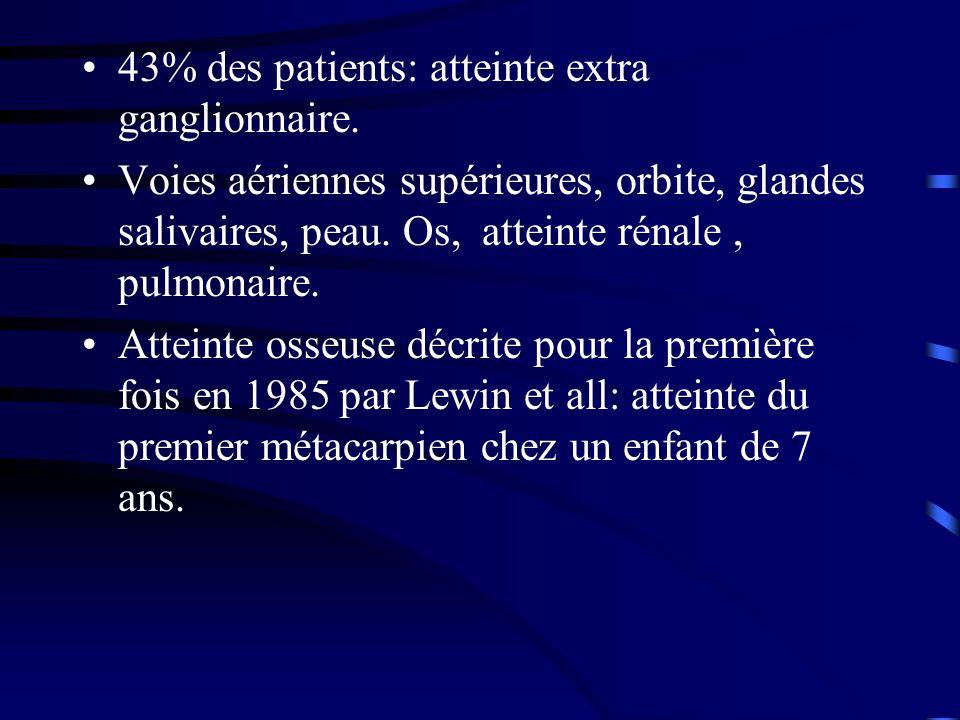 43% des patients: atteinte extra ganglionnaire. Voies aériennes supérieures, orbite, glandes salivaires, peau. Os, atteinte rénale, pulmonaire. Attein