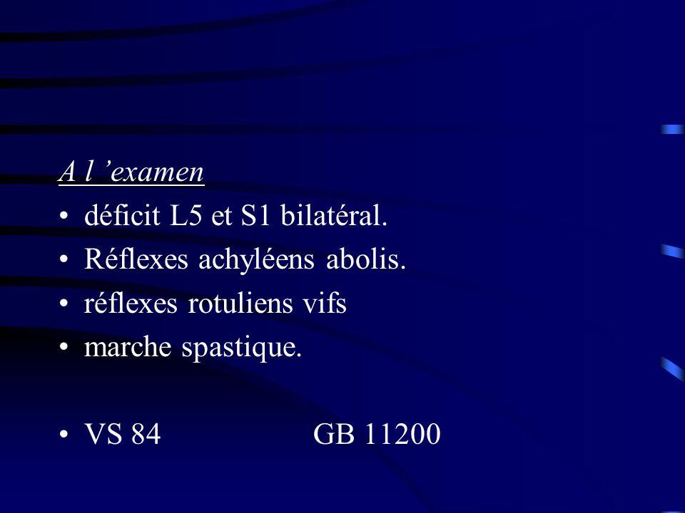 A l examen déficit L5 et S1 bilatéral. Réflexes achyléens abolis. réflexes rotuliens vifs marche spastique. VS 84 GB 11200