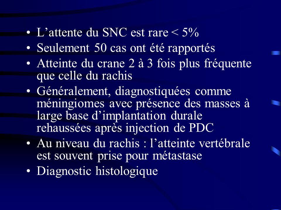 Lattente du SNC est rare < 5% Seulement 50 cas ont été rapportés Atteinte du crane 2 à 3 fois plus fréquente que celle du rachis Généralement, diagnos