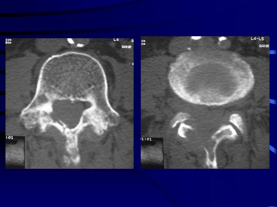 Localisations osseuses rares < 10% Atteinte osseuse primaire : quelques cas: Métaphyse Lytique Centro-médullaire Bien limitée