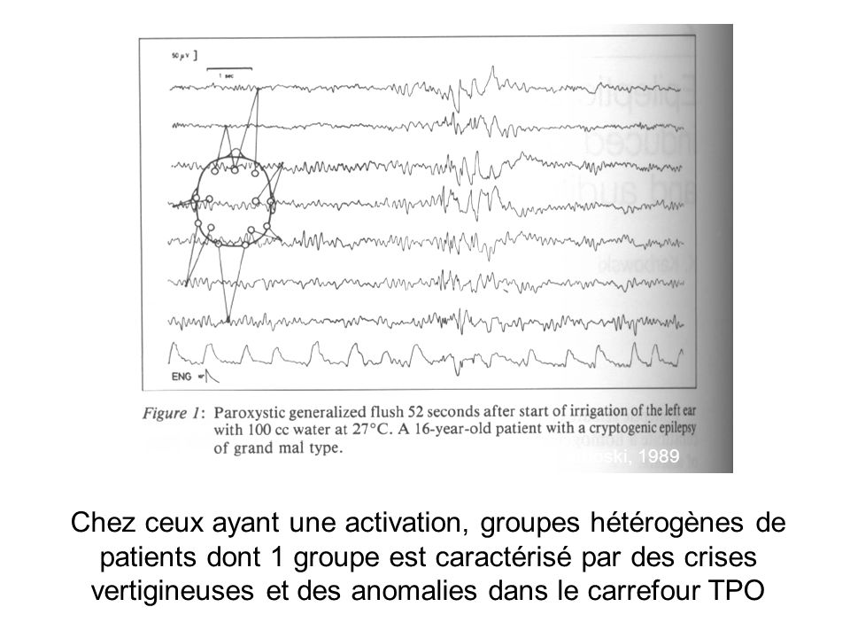 Epileptic manifestations with vestibular disturbances Aura of various type of partial (Smith, 1959) Vestibulogenic Epilepsy (reflex) Isolated dizziness/vertigo seizures (dizziness epilepsy Kogeorgos et al, 1981; Vestibular epilepsy, Alpers, 1959 ) Epilepsy with Epileptic Nystagmus Rotatory/Volvular Epilepsy