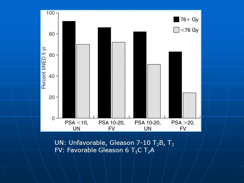 UN: Unfavorable, Gleason 7-10 T 2 B, T 3 FV: Favorable Gleason 6 T 1 C T 2 A