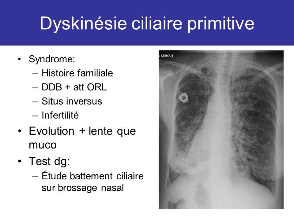 Dyskinésie ciliaire primitive Syndrome: –Histoire familiale –DDB + att ORL –Situs inversus –Infertilité Evolution + lente que muco Test dg: –Étude bat
