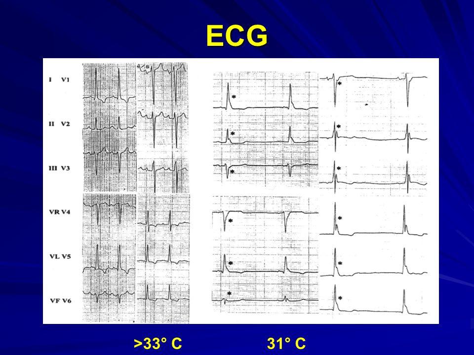 ECG >33° C31° C