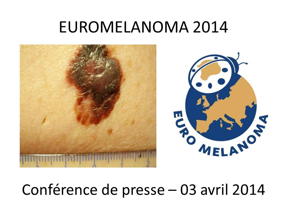 EUROMELANOMA 2014 Conférence de presse – 03 avril 2014