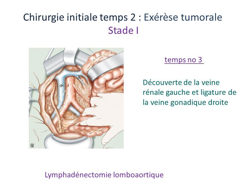 Lymphadénectomie lomboaortique Chirurgie initiale temps 2 : Exérèse tumorale Stade I Découverte de la veine rénale gauche et ligature de la veine gona