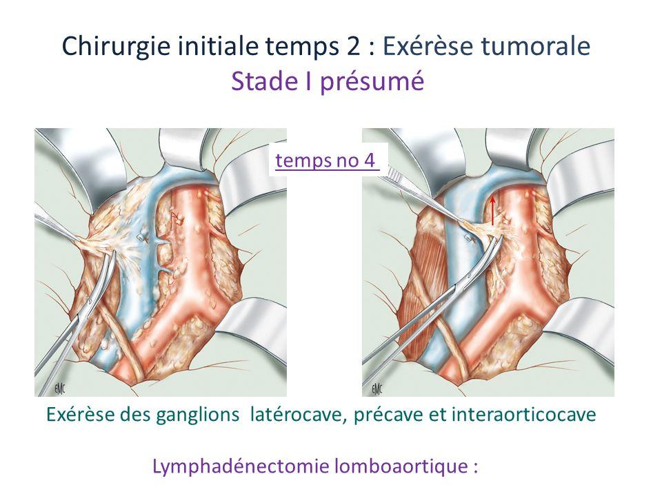 Lymphadénectomie lomboaortique : Chirurgie initiale temps 2 : Exérèse tumorale Stade I présumé Exérèse des ganglions latérocave, précave et interaorti